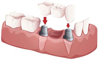 dental bridge Guthrie